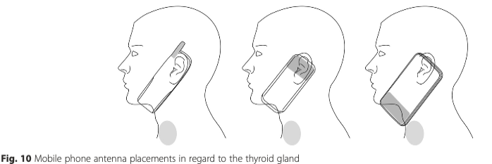 Smartphone Irradiates Thyroid